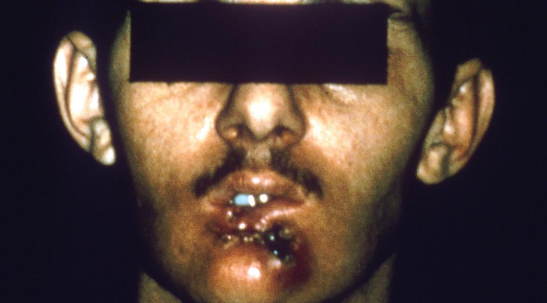 Il labbro inferiore del cancro della bocca