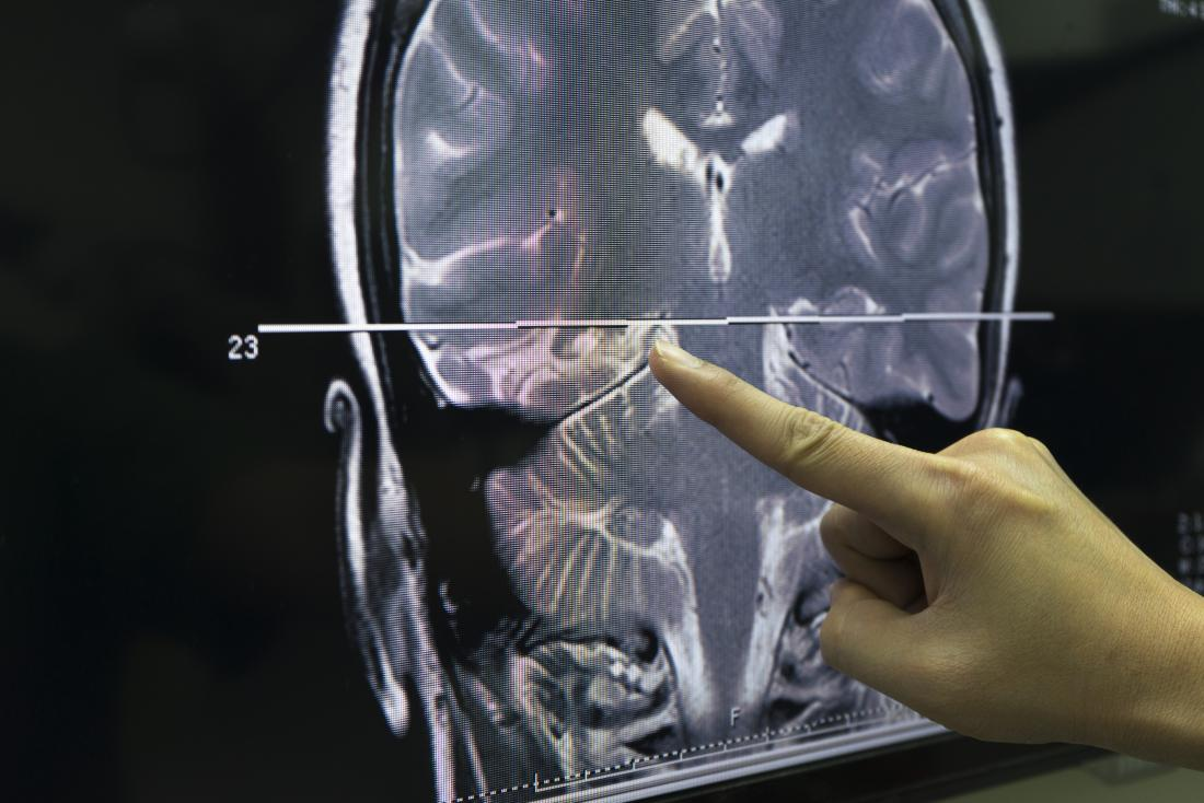 Gehirn Scan