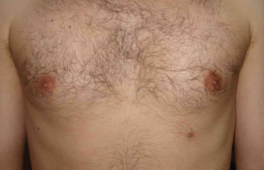 Überzählige dritte Brustwarze. Bildnachweis: Zureks, (2009)