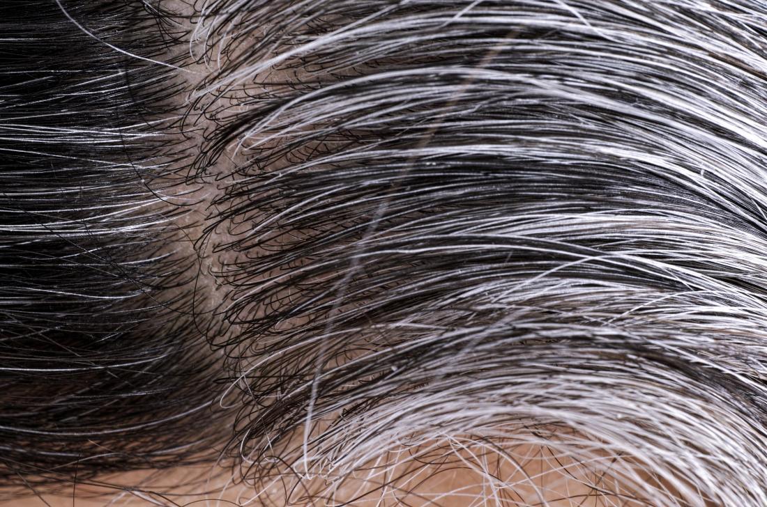 Poils blancs et gris qui poussent sur la tête de la personne.