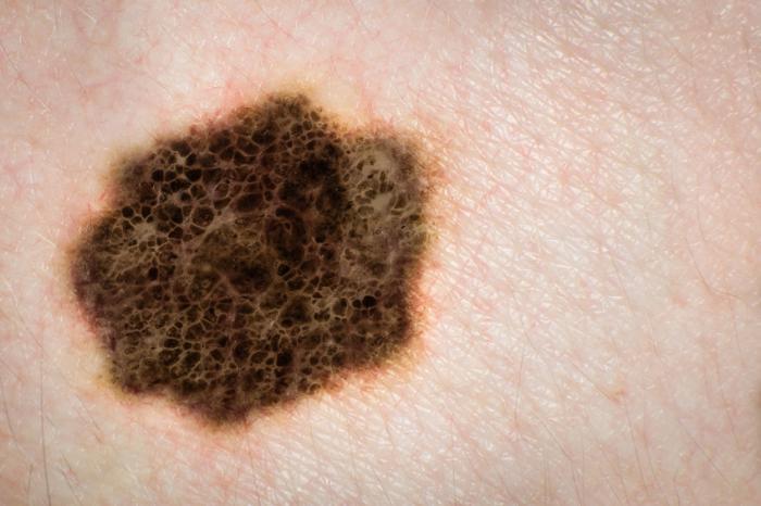marca de pele