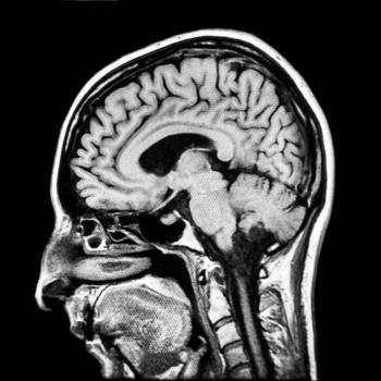 [Cổ và đầu MRI]
