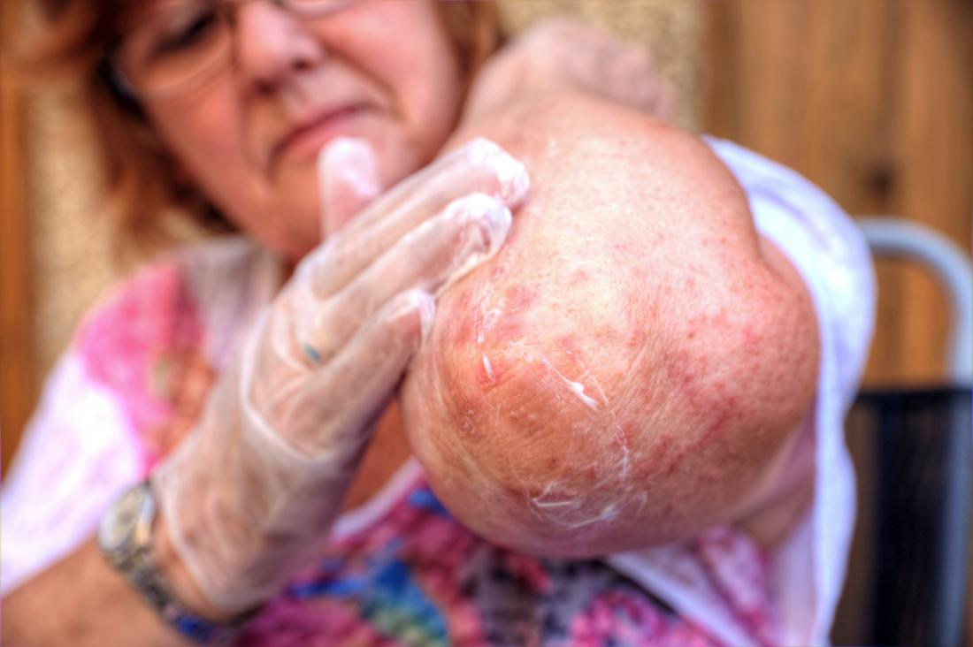 Mulher, rubbing, creme, eczema