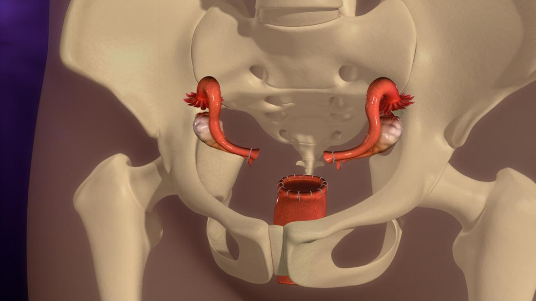 Hystérectomie endométriose