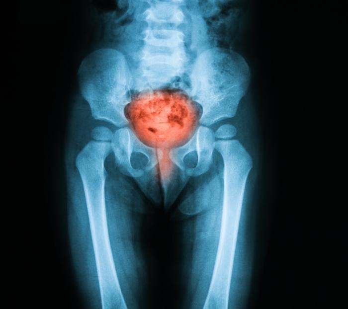 膀胱および腹部のX線。