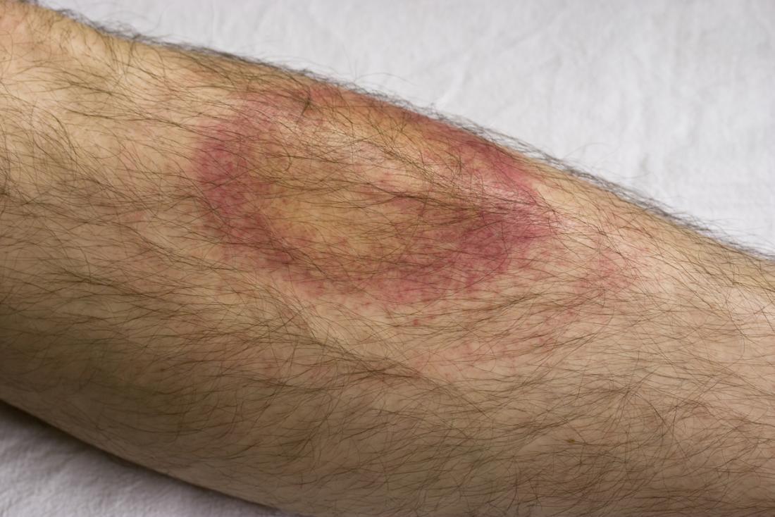 Um eritema migratório (EM) deve ser relatado a um médico, pois pode indicar a doença de Lyme.