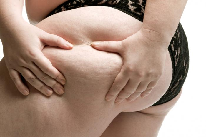 Celulite na coxa esquerda de uma mulher