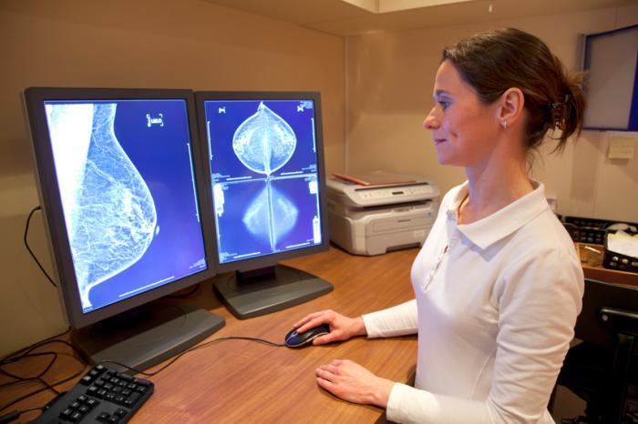 放射線科医が乳房スキャンを見ている。