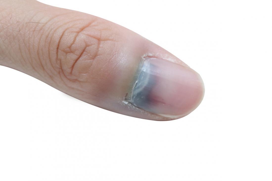 傷ついた爪。