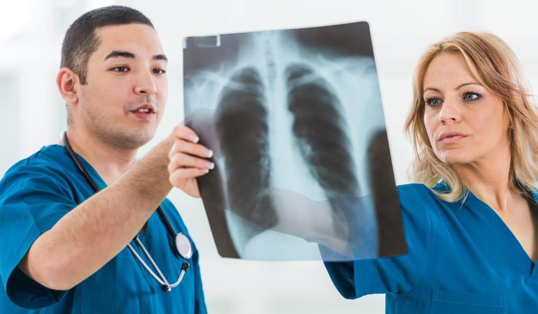 due chirurghi osservano un polmone a raggi x