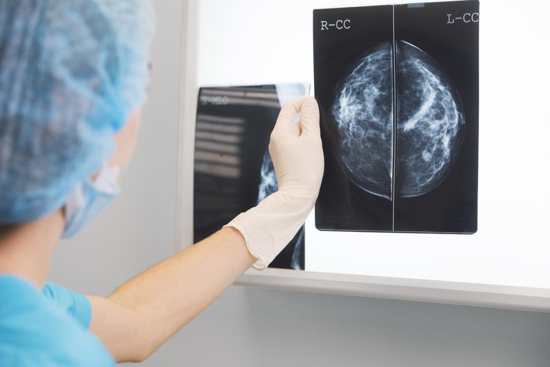 Chụp quang tuyến vú có thể được sử dụng để chẩn đoán ung thư vú ba âm tính.