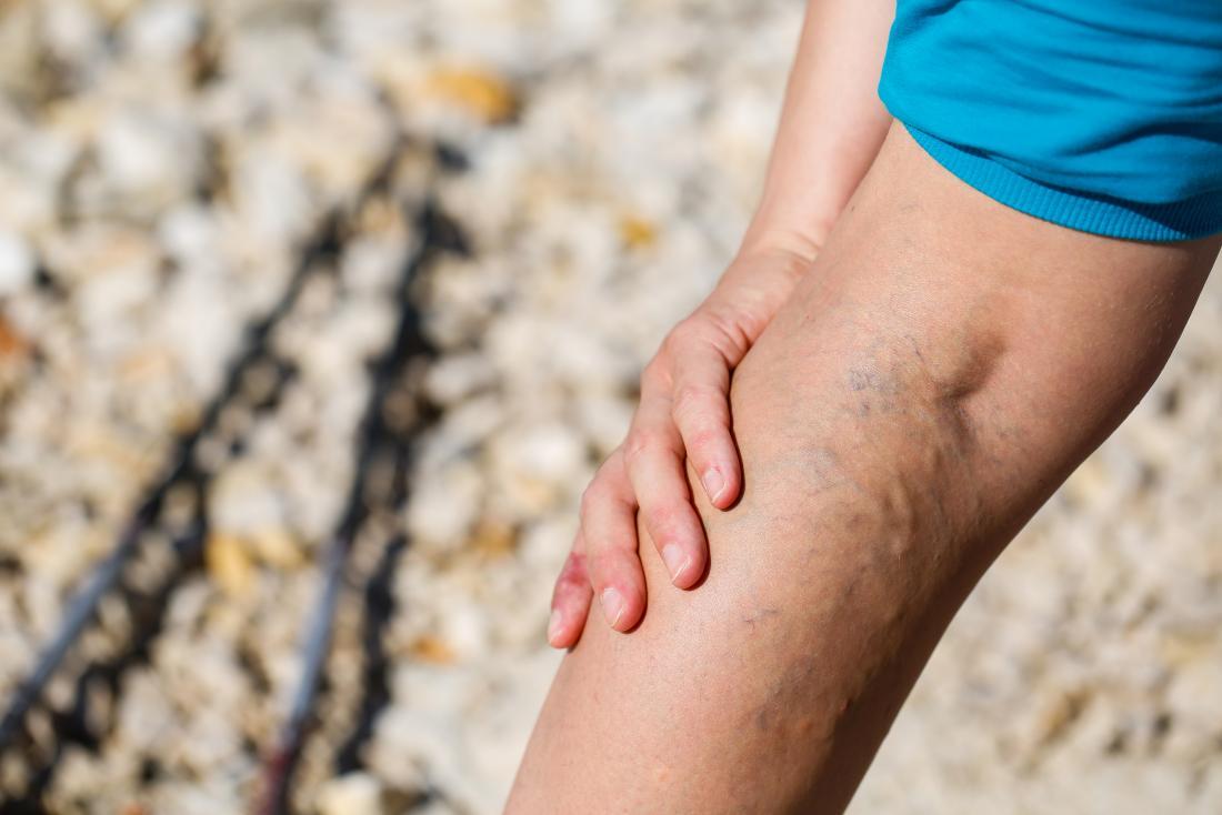 Pessoas com varizes são mais propensas a desenvolver eczema varicoso.