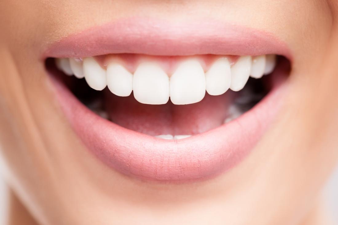 Bonnes dents
