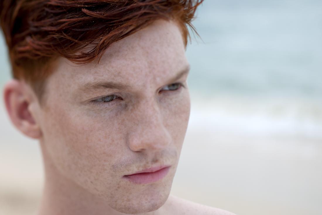 Fitzpatrick pele tipo 1, pele pálida, sardas, cabelos ruivos.