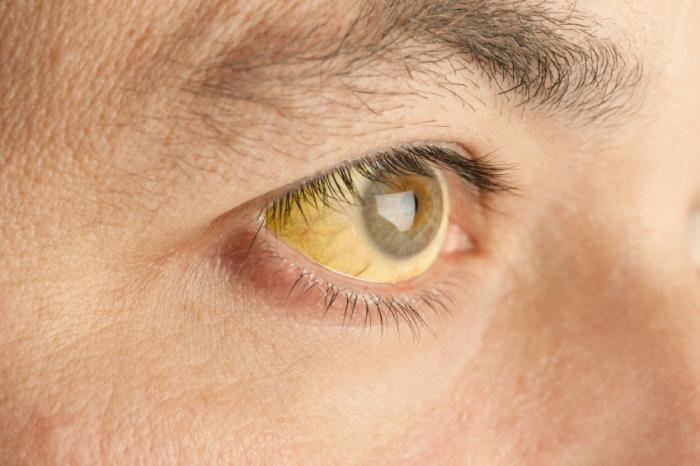 Ein Erwachsener mit gelben Augen.