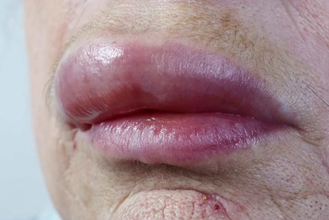 Lábios inchados