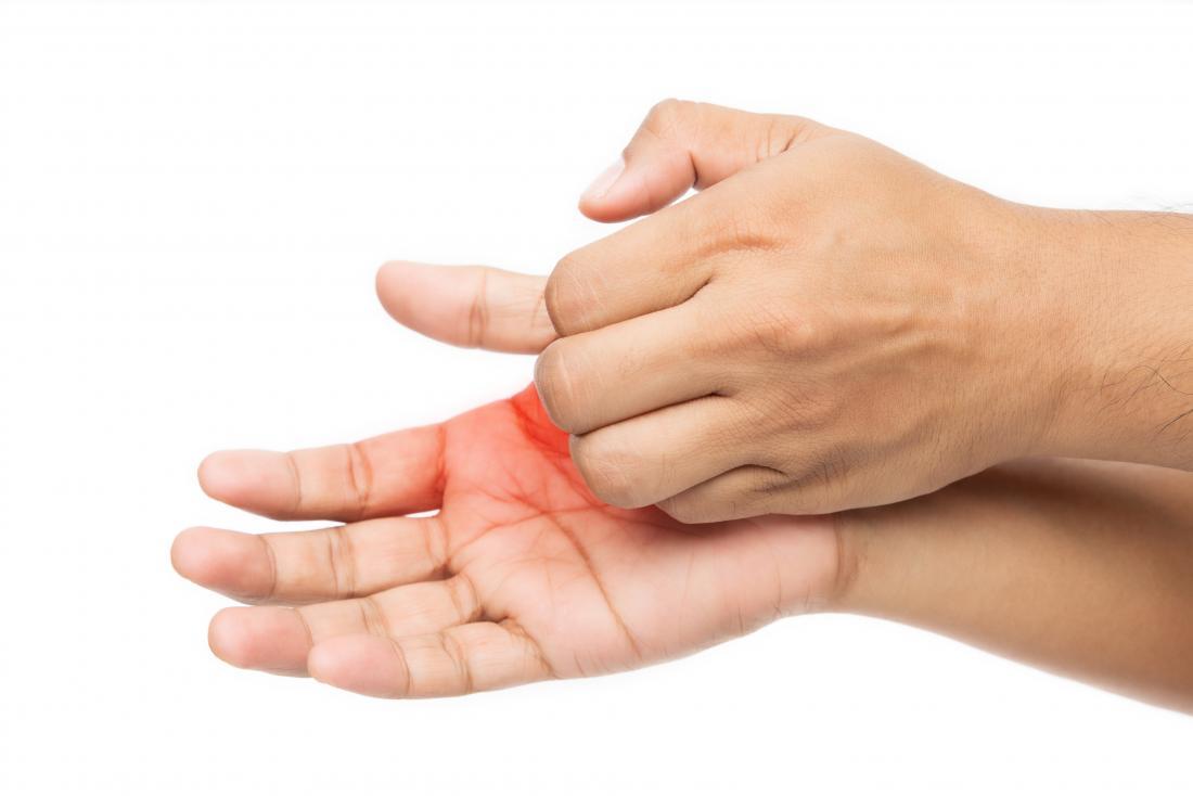 homem coçando a palma da mão