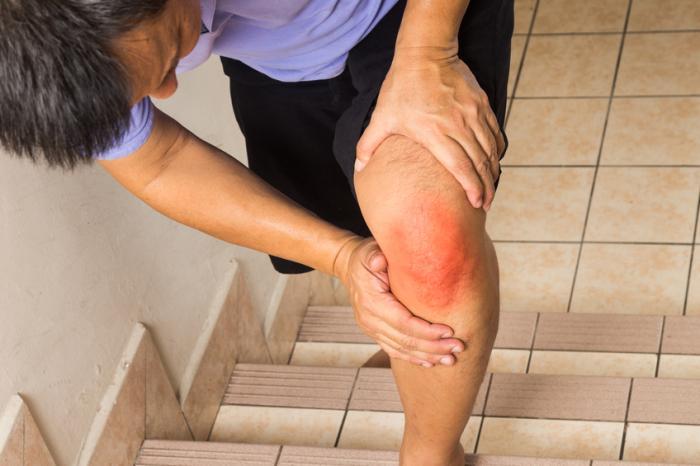 Un homme a mal au genou en montant des escaliers.