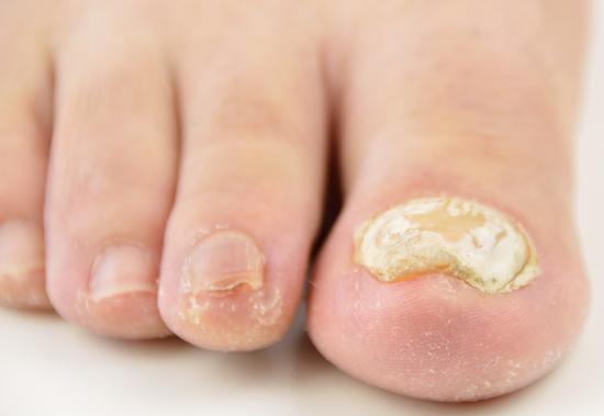 白い真菌の厚い足の爪。