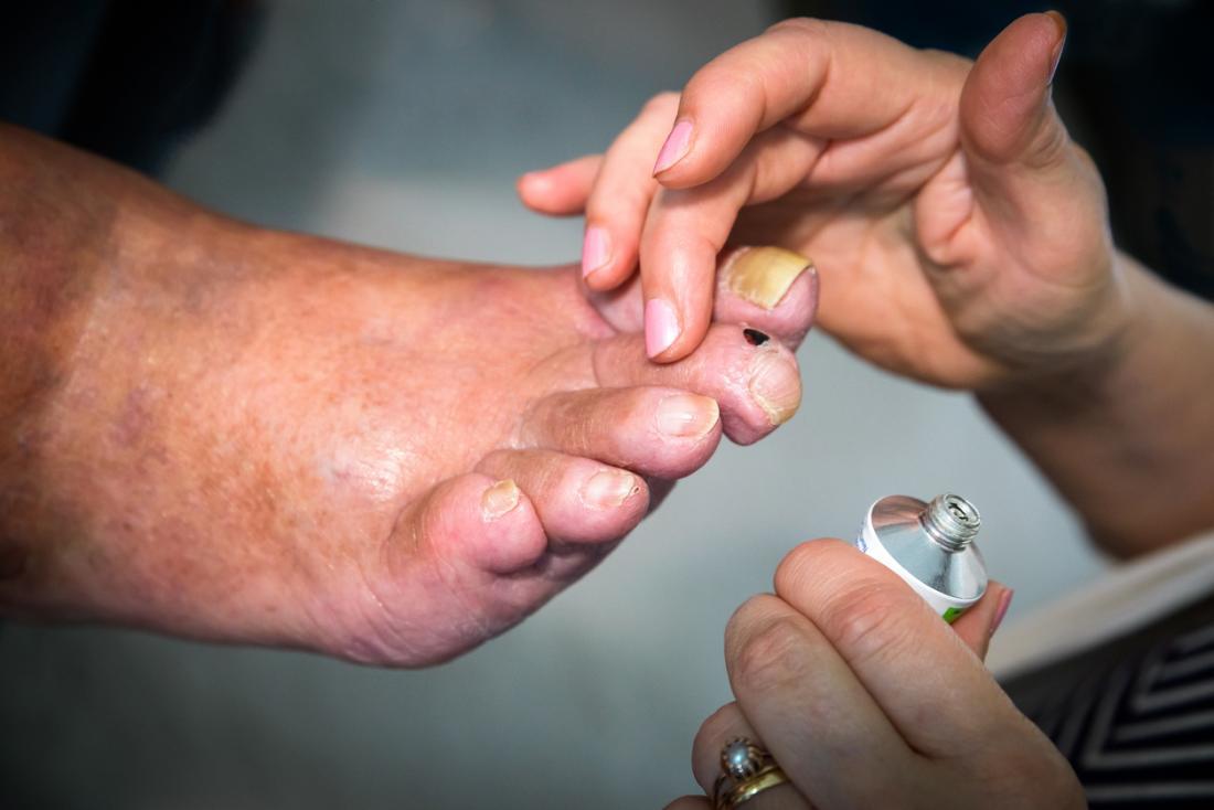 人は痛風と厚い爪で足の軟膏に適用する。