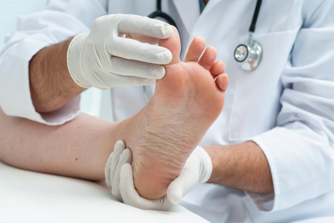 Doutor que olha a casca da pele entre os dedos do pé do paciente.