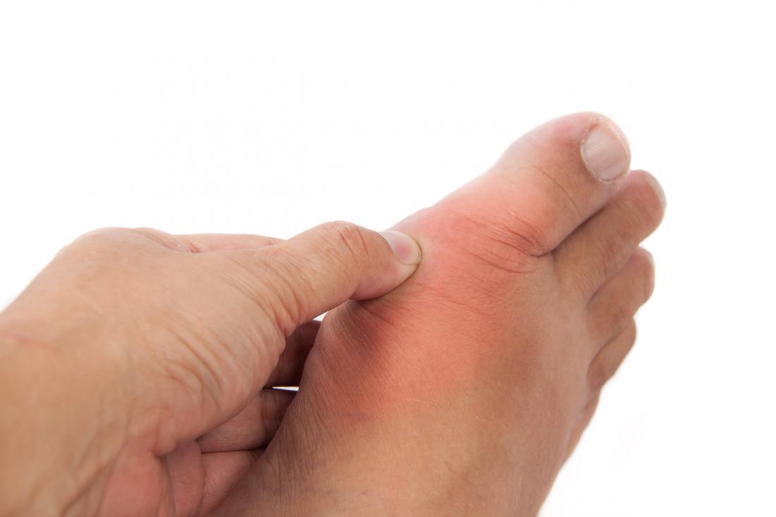Fußentzündung mit Gicht.