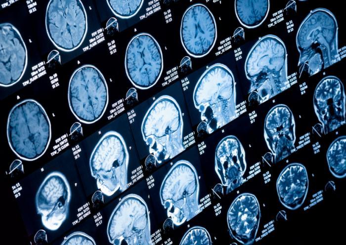 MRI脳スキャン