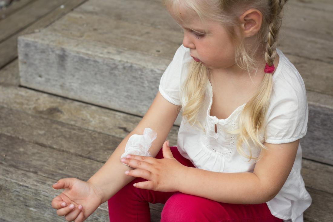 彼女の腕にクリームを塗っている少女