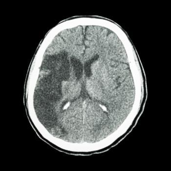 Ein CT-Scan eines ischämischen Schlaganfalls