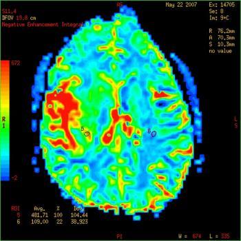 [Beyin taraması gösteren tümör]