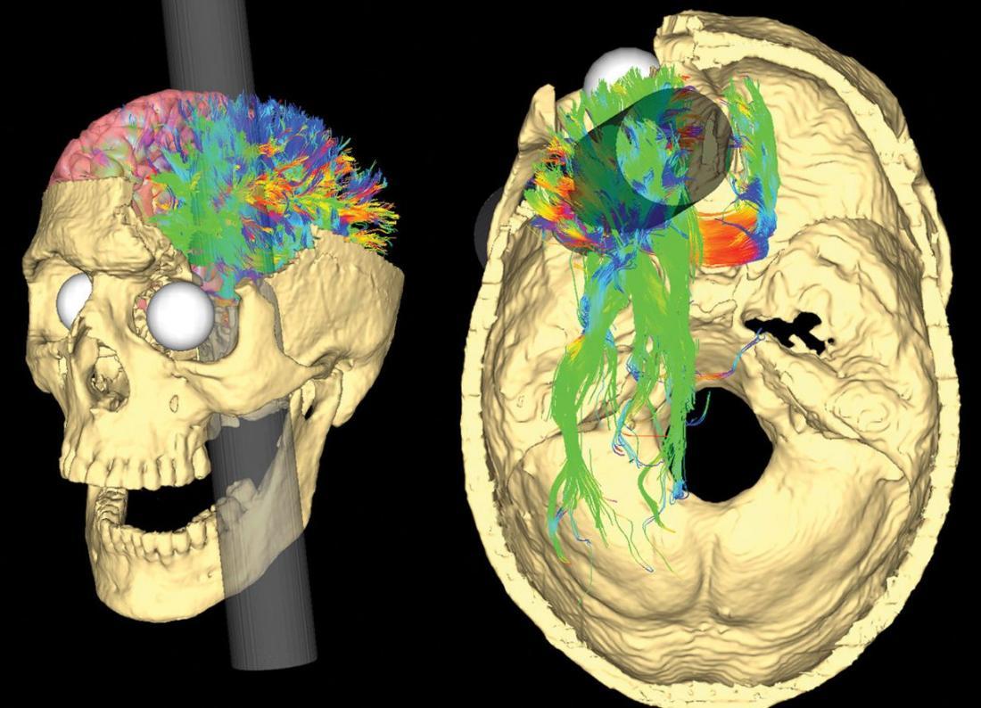 мозъкът на финес