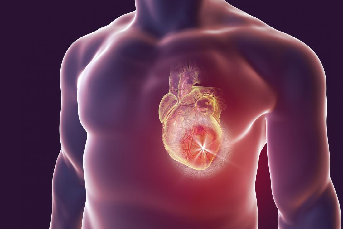 илюстрация представляваща сърдечен проблем