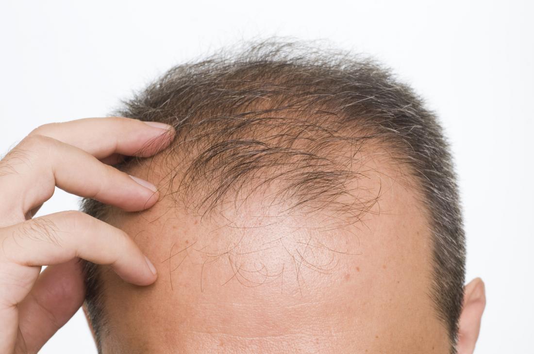 ein Mann, der Haarausfall erfährt