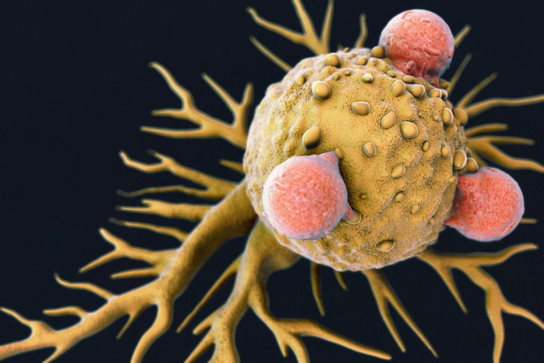 t-Zellen, die eine Krebszelle angreifen