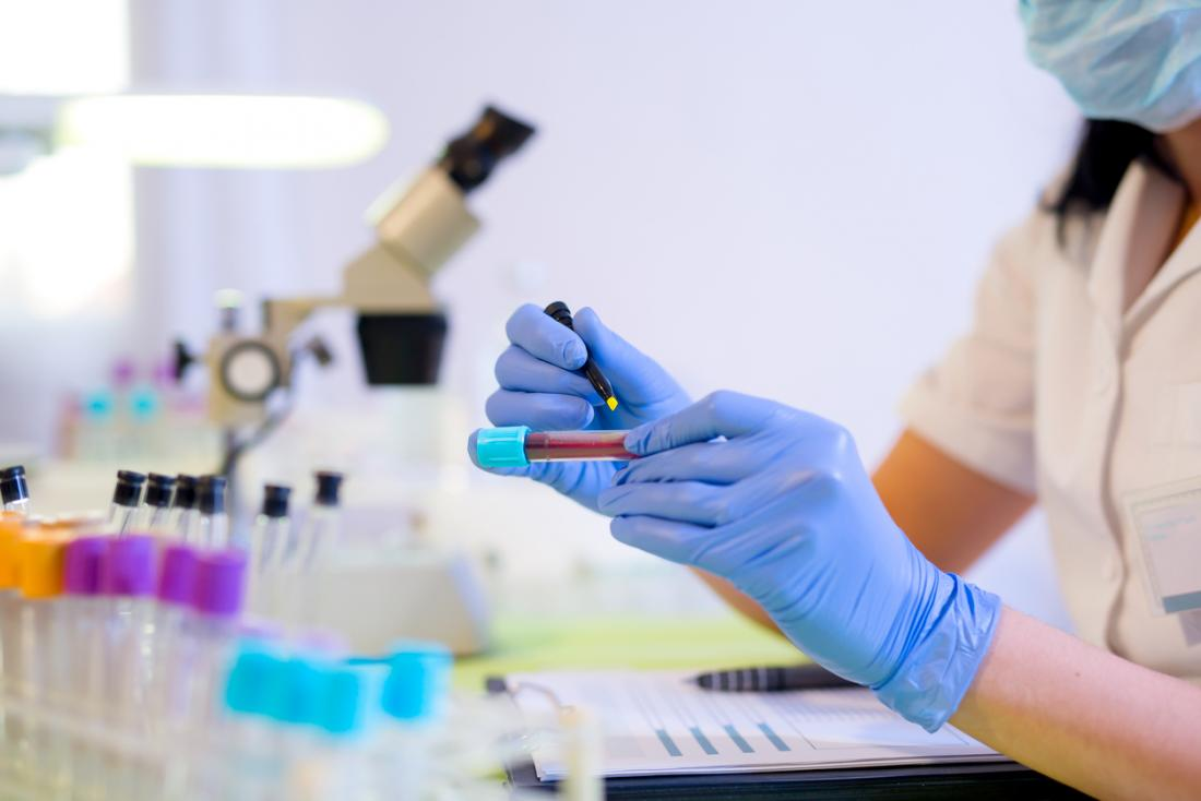 Bluttest in einem Labor