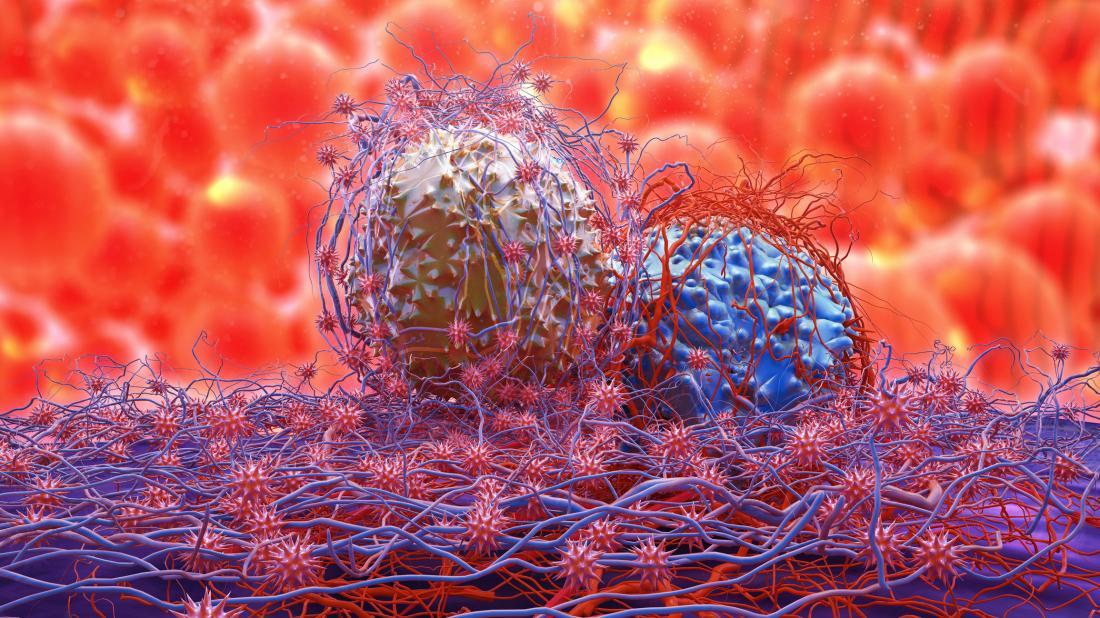 分裂癌細胞