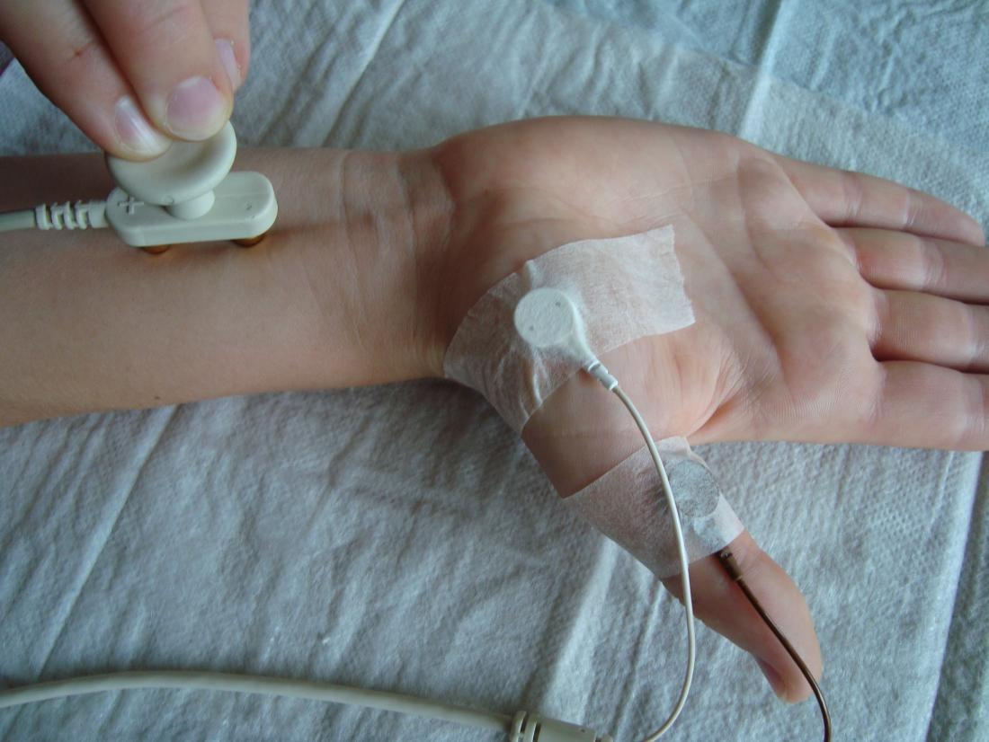Vitesse de conduction nerveuse. Crédit d'image: Kiwi-sonja, (2008, 6 juin).