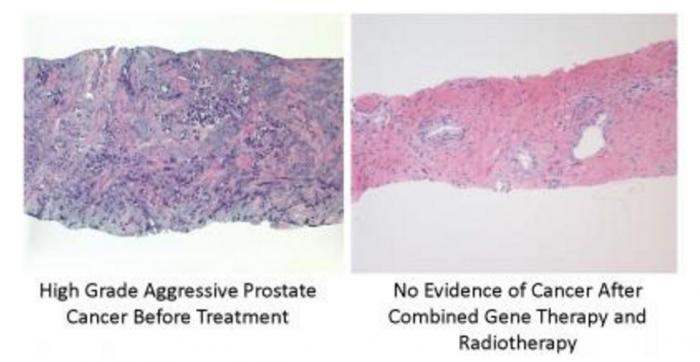 前立腺癌遺伝子治療