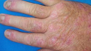 psoriasis sur une main de personnes