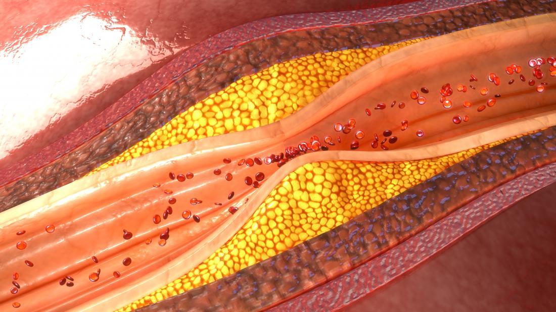 accumulation de plaque à l'intérieur des artères