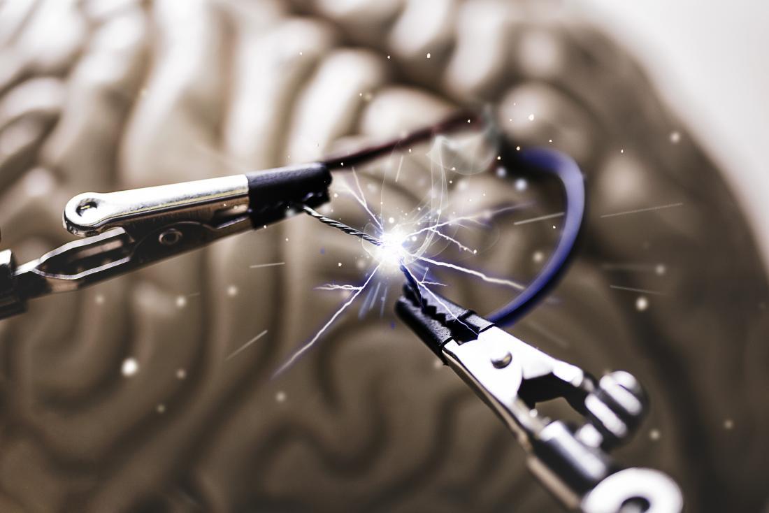 Elettricità cerebrale