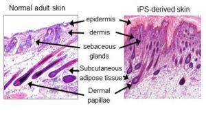 Da bình thường và iPS