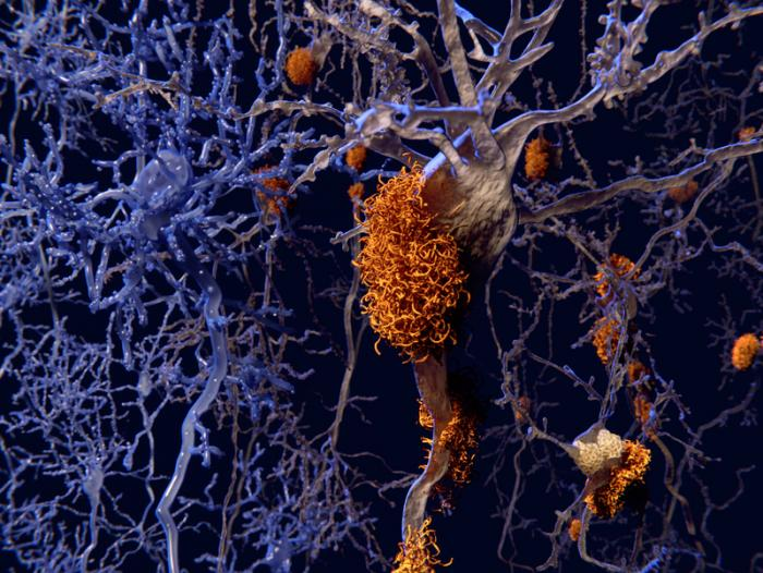 placche beta amiloidi