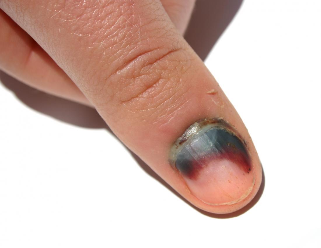 Ematoma subunguale sull'unghia
