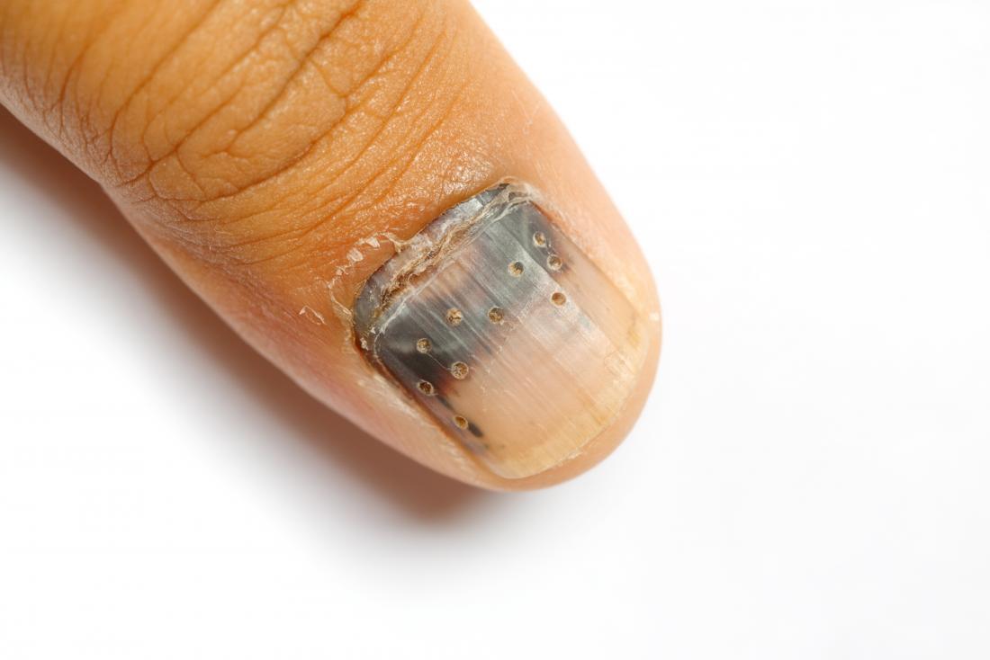Hematoma subungueal onde o médico perfurou orifícios nas unhas