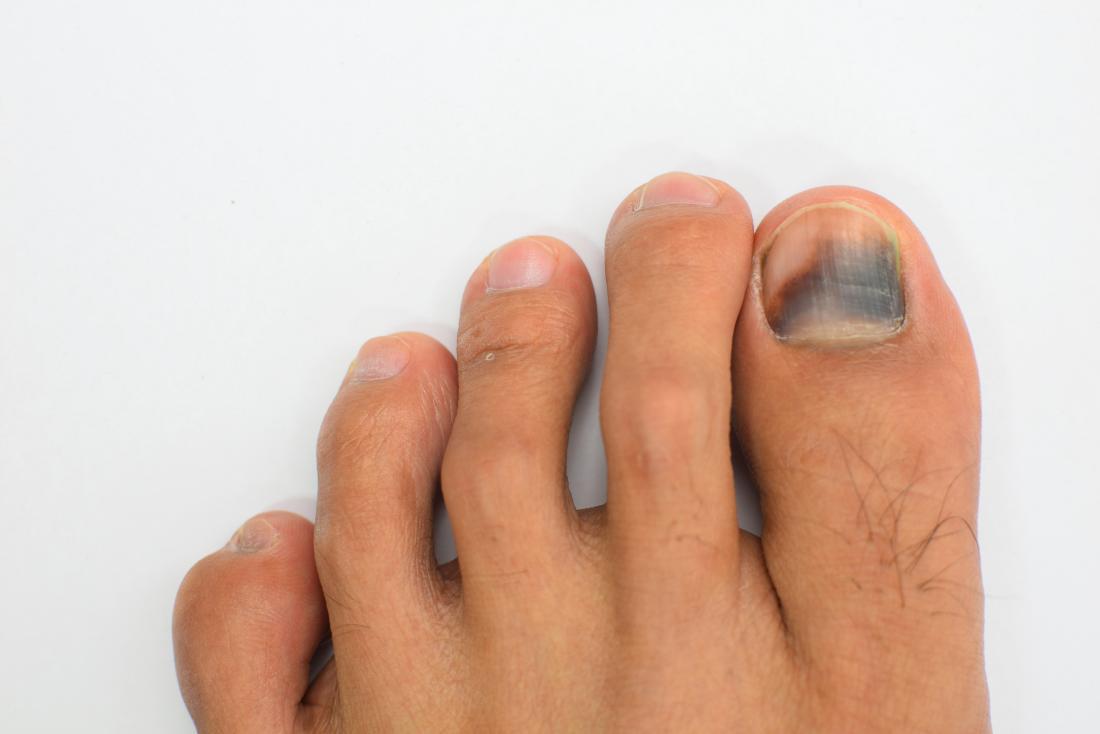 hematoma no dedão do pé