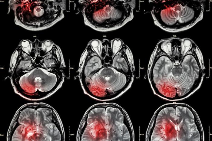 [Tumeur cérébrale IRM]