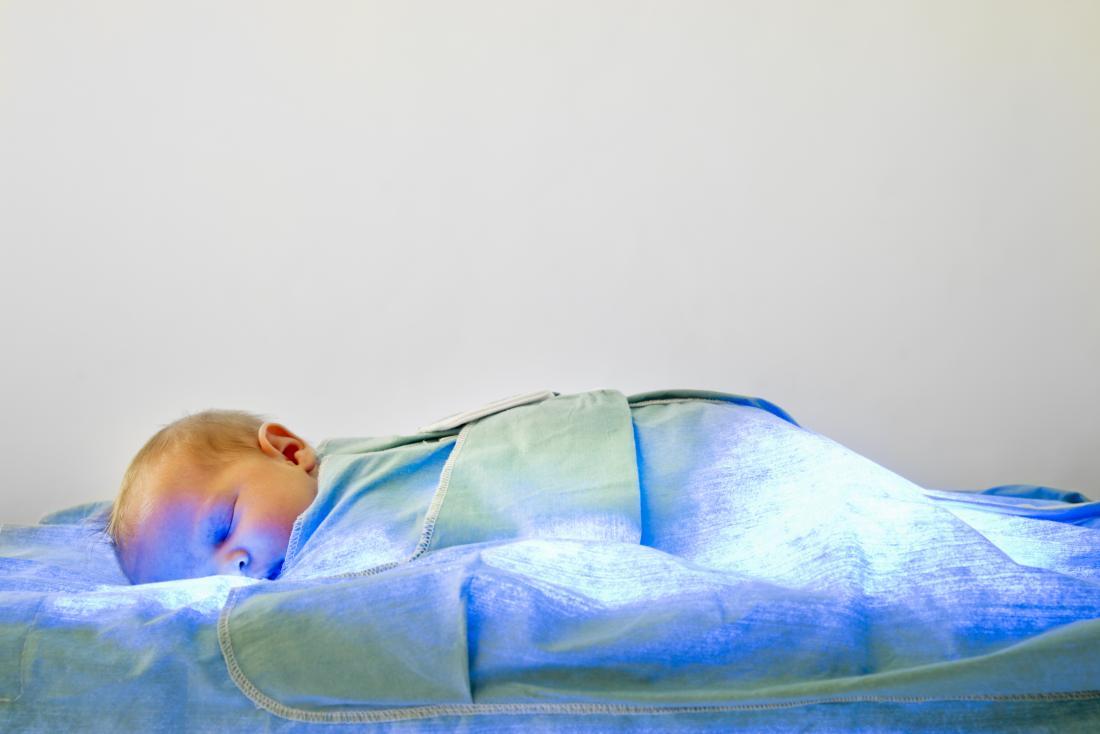 Baby, das Lichttherapie für Gelbsucht empfängt. Unbehandelte Gelbsucht kann Kernikterus verursachen