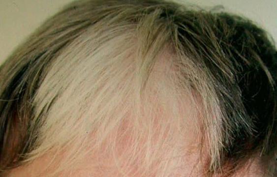 poliose afetando o crédito da imagem do cabelo dermnet nova zelândia