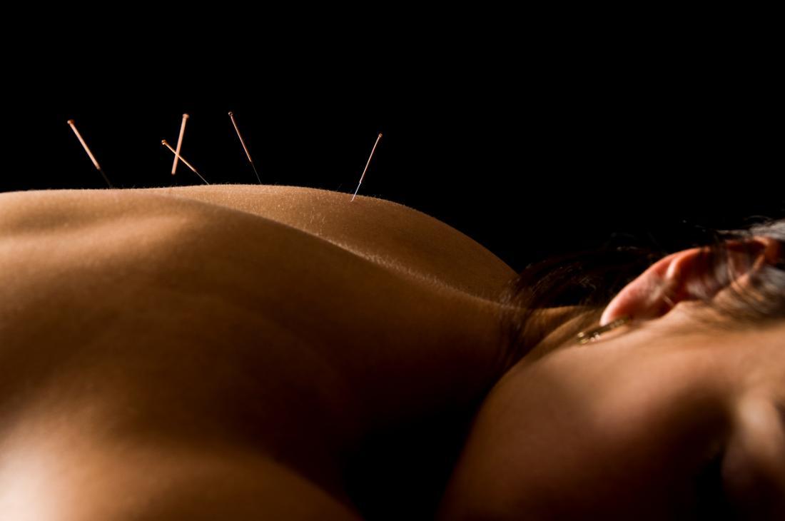 mulher em tratamento de acupuntura